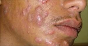 Tipos de acné, conglobata