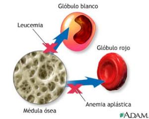 Tipos de anemia, aplásica