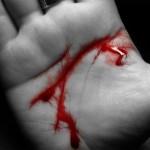 Tipos de hemorragias