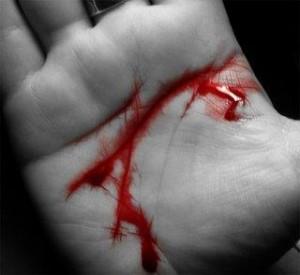 Tipos de hemorragias externa