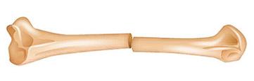 Lesión o fractura de forma transversal